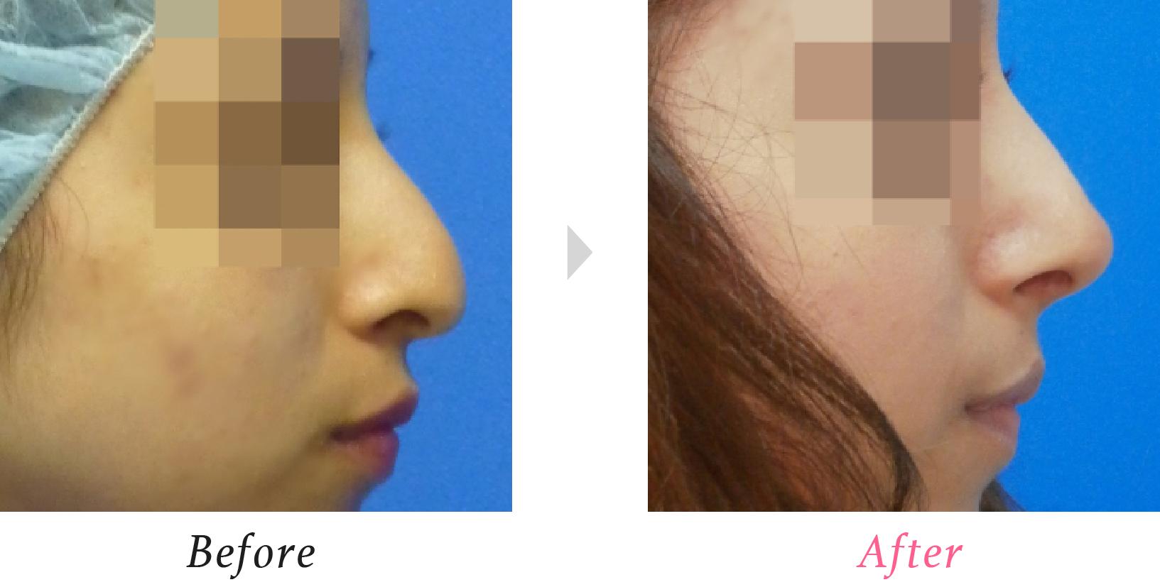 鼻尖挙上術+わし鼻形成術