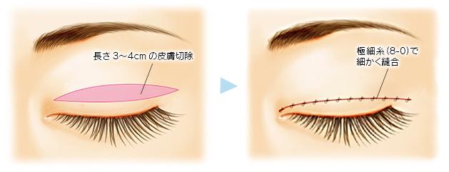 上眼瞼切開術