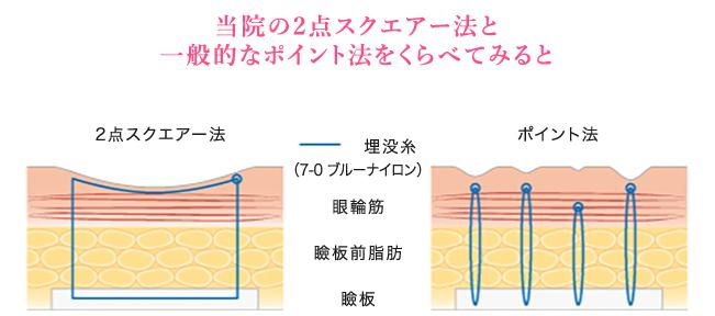 2点スクエアー法とポイント法の比較