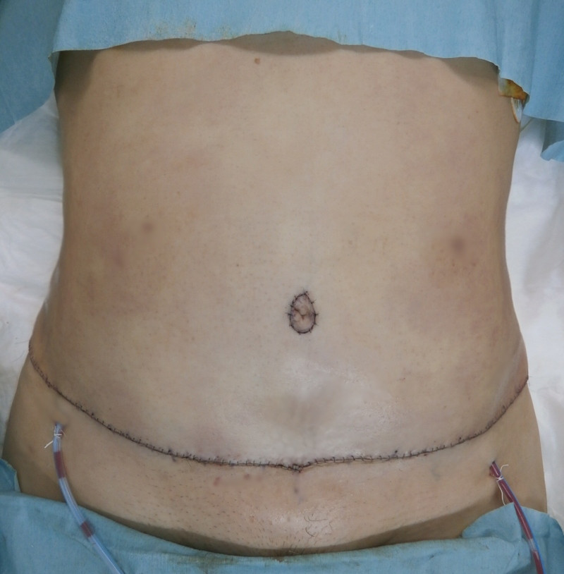 腹壁形成術 (Tammy tack , Abdominoplasty)