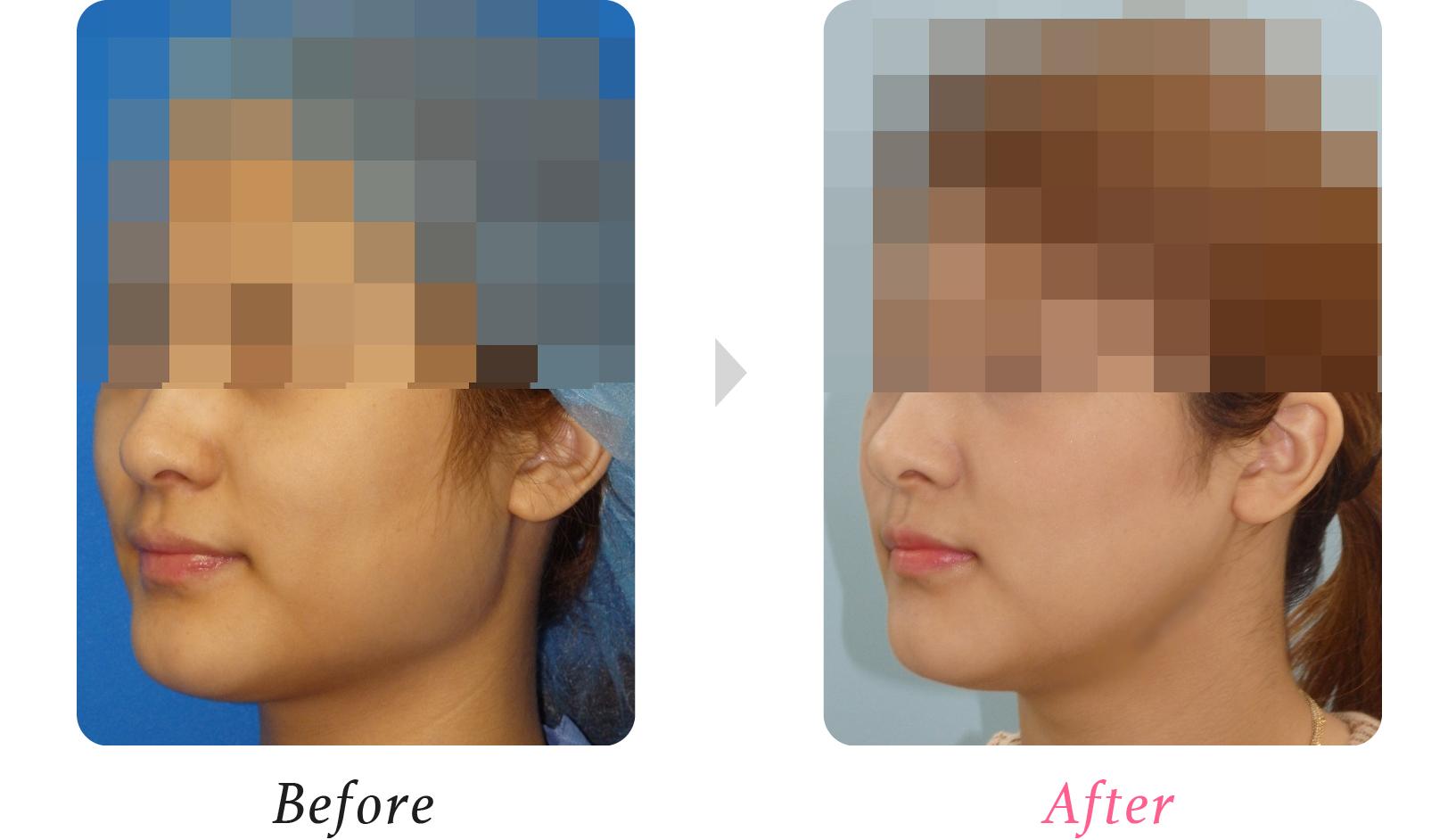 エラ削り(下顎角形成)|美容外科、美容整形の小木曽クリニック