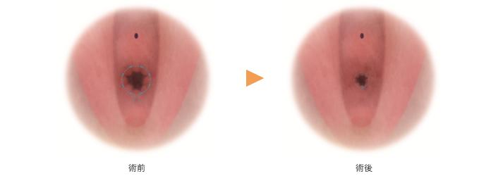 処女膜 再生 手術 湘南 美容 外科 処女膜切開手術|婦人科形成なら湘南美容クリニック【公式】
